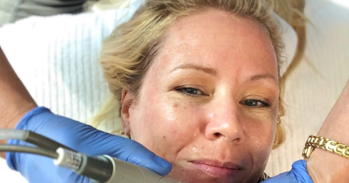Hydrafacial with dermaplaning: my experience!